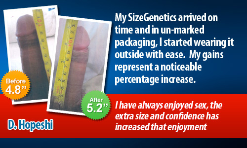 sizegenetics gains