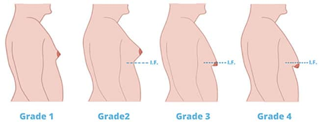 Symptoms of Gynecomastia