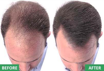 hair fiber results