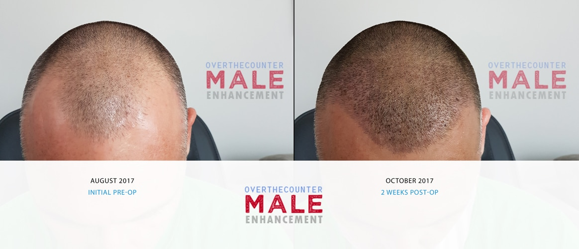 FUE Hair Transplant Before & Results