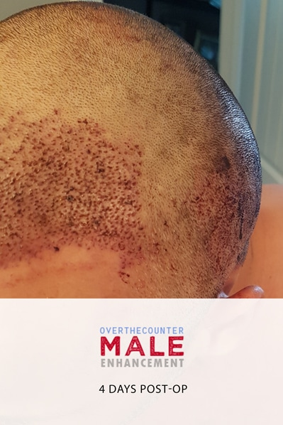 Fue Transplant Scarring